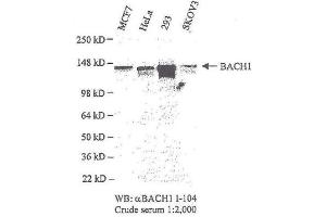 Western Blotting (WB) image for anti-BRIP1 antibody (BRCA1 Interacting Protein C-terminal Helicase 1) (C-Term) (ABIN151876)
