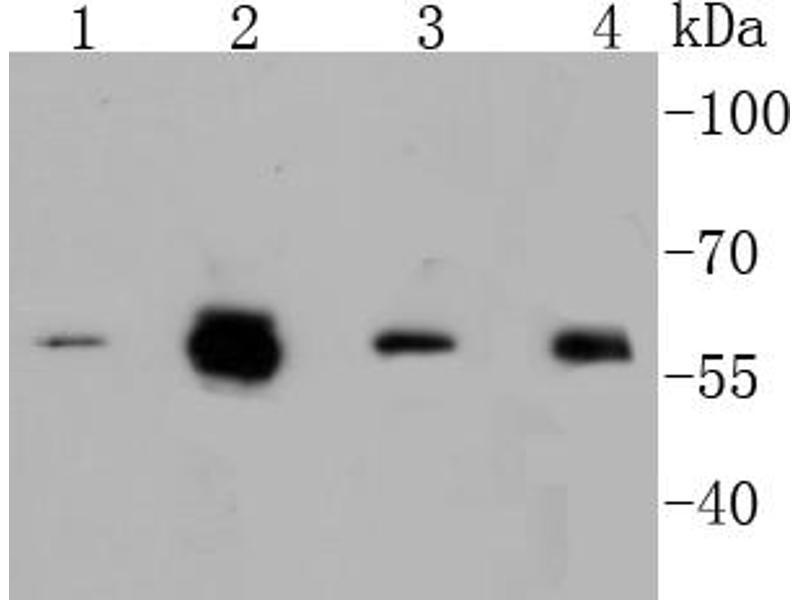 Western Blotting (WB) image for anti-V-Myc Myelocytomatosis Viral Oncogene Homolog (Avian) (MYC) (pSer62) antibody (ABIN5557289)