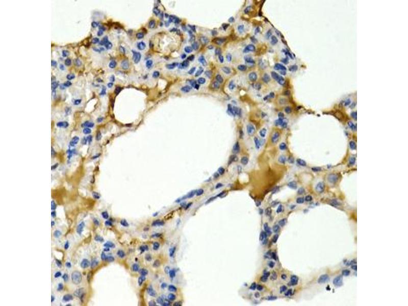 Immunohistochemistry (IHC) image for anti-Interleukin 9 (IL9) antibody (ABIN5963644)