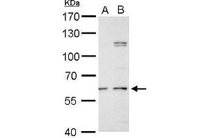 Image no. 5 for anti-Galactosamine (N-Acetyl)-6-Sulfate Sulfatase (GALNS) (Center) antibody (ABIN2856743)