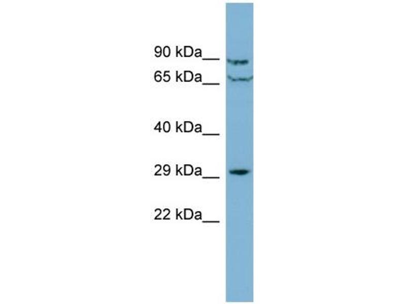 Western Blotting (WB) image for anti-CutC Copper Transporter Homolog (E. Coli) (CUTC) (Middle Region) antibody (ABIN504087)