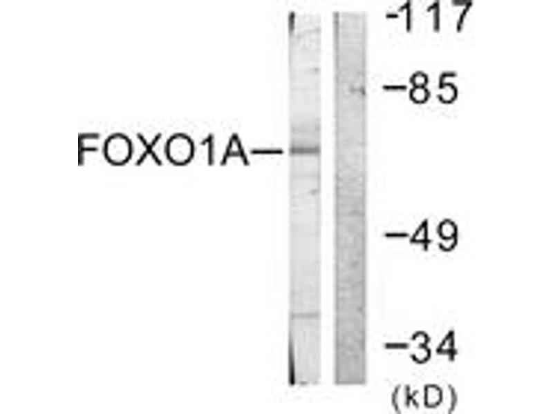 Western Blotting (WB) image for anti-Forkhead Box O1 (FOXO1) (AA 295-344) antibody (ABIN1532340)