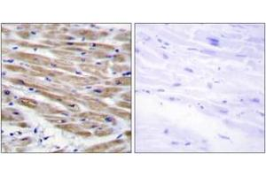 Image no. 1 for anti-Mitogen-Activated Protein Kinase Kinase Kinase 4 (MAP3K4) (AA 1281-1330) antibody (ABIN1534230)