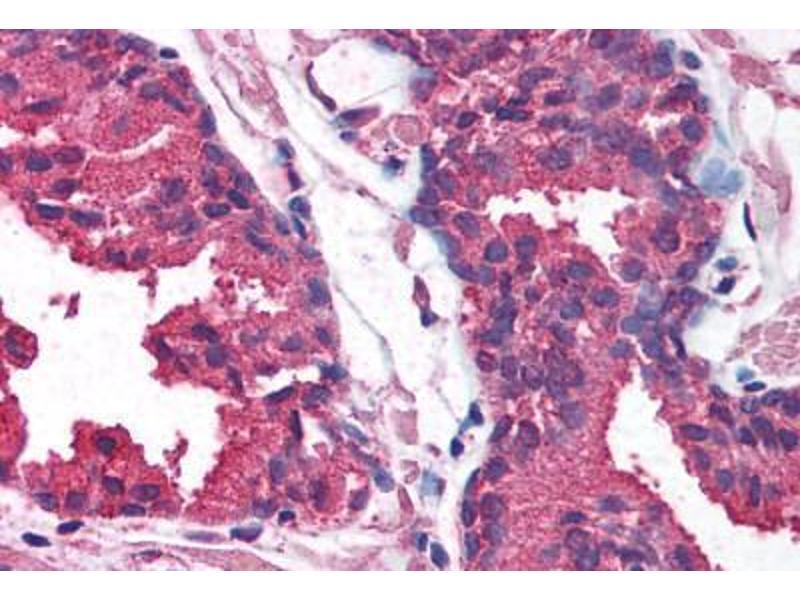 Immunohistochemistry (Paraffin-embedded Sections) (IHC (p)) image for anti-AKT antibody (V-Akt Murine Thymoma Viral Oncogene Homolog 1) (AA 121-170) (ABIN214085)