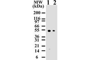 Western Blotting (WB) image for anti-Caspase 8, Apoptosis-Related Cysteine Peptidase (CASP8) (Proform) antibody (ABIN252488)