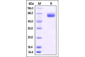 Image no. 1 for V-Set Domain Containing T Cell Activation Inhibitor 1 (VTCN1) (AA 33-194) (Active) protein (Fc Tag) (ABIN2870804)