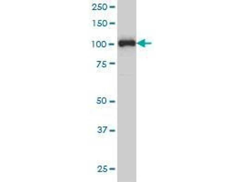 Western Blotting (WB) image for anti-Progesterone Receptor (PGR) (AA 1-111) antibody (ABIN393969)