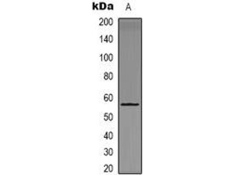Western Blotting (WB) image for anti-CHEK1 antibody (Checkpoint Kinase 1) (pSer301) (ABIN2957528)
