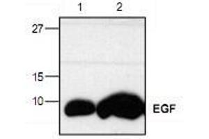 Western Blotting (WB) image for anti-EGF antibody (Epidermal Growth Factor) (ABIN223519)