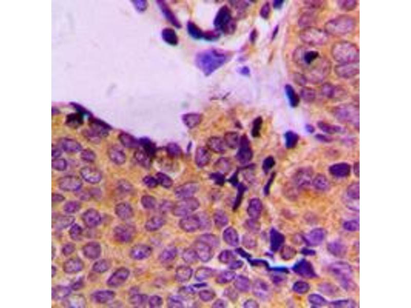 Immunohistochemistry (IHC) image for anti-3-phosphoinositide Dependent Protein Kinase-1 (PDPK1) (pSer241) antibody (ABIN2706787)