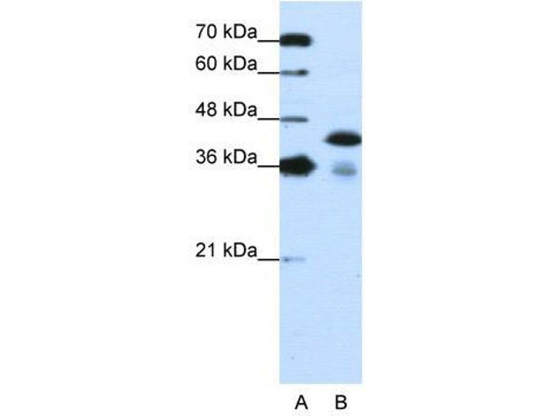 Western Blotting (WB) image for anti-TAR DNA Binding Protein (TARDBP) (C-Term) antibody (ABIN183735)