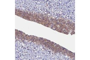 Immunohistochemistry (Paraffin-embedded Sections) (IHC (p)) image for anti-Cytokine Induced Apoptosis Inhibitor 1 (CIAPIN1) antibody (ABIN4298735)