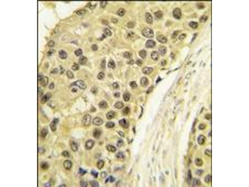 Immunohistochemistry (Paraffin-embedded Sections) (IHC (p)) image for anti-Cyclin A2 (CCNA2) (C-Term) antibody (ABIN359545)