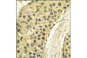 Immunohistochemistry (Paraffin-embedded Sections) (IHC (p)) image for anti-Cyclin A antibody (Cyclin A2) (C-Term) (ABIN359545)
