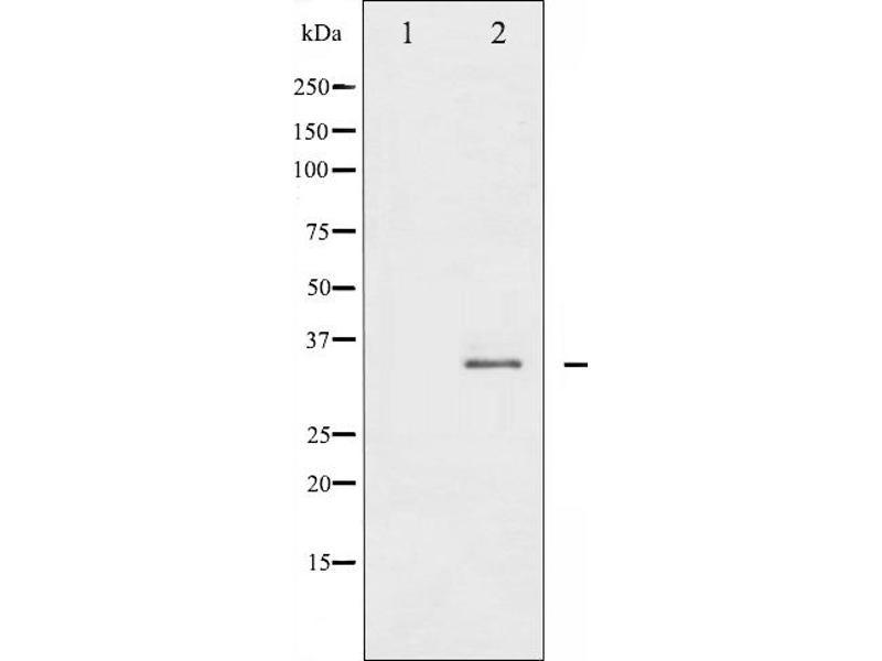 Western Blotting (WB) image for anti-Syntaxin 1A (Brain) (STX1A) (pSer14) antibody (ABIN6256140)
