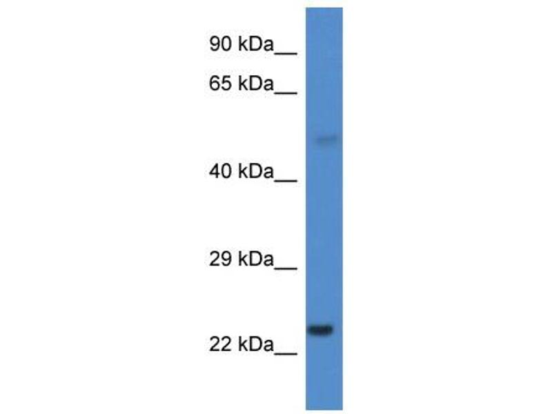 Western Blotting (WB) image for anti-Cytochrome P450, Family 1, Subfamily B, Polypeptide 1 (CYP1B1) (Middle Region) antibody (ABIN2784612)