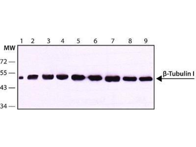 Western Blotting (WB) image for anti-Tubulin, beta 1 (TUBB1) (C-Term) antibody (ABIN265867)