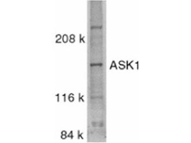 image for anti-MAP3K5 antibody (Mitogen-Activated Protein Kinase Kinase Kinase 5) (C-Term) (ABIN318975)