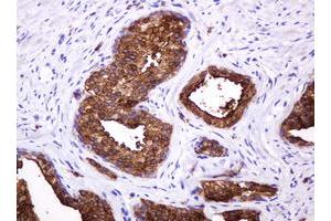 Image no. 7 for anti-Mucin 1, Cell Surface Associated (MUC1) antibody (ABIN1499598)