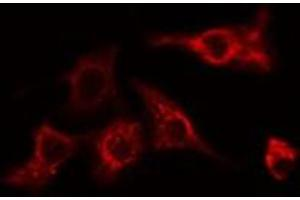 Image no. 3 for anti-Myosin Regulatory Light Chain Interacting Protein (MYLIP) antibody (ABIN6257336)