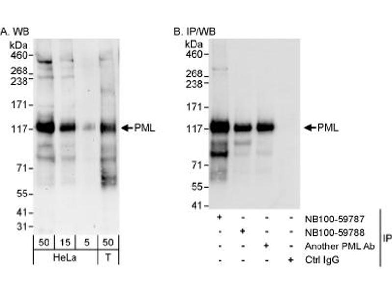 Western Blotting (WB) image for anti-Promyelocytic Leukemia (PML) (AA 375-425) antibody (ABIN252967)