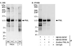 Western Blotting (WB) image for anti-Promyelocytic Leukemia (PML) (AA 375-425) antibody (ABIN252967)