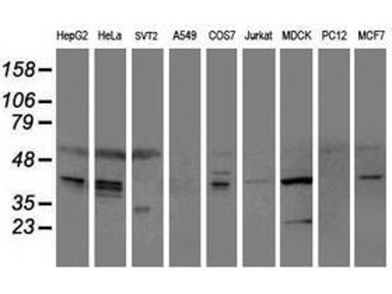 image for anti-serpin Peptidase Inhibitor, Clade E (Nexin, Plasminogen Activator Inhibitor Type 1), Member 1 (SERPINE1) antibody (ABIN1499718)