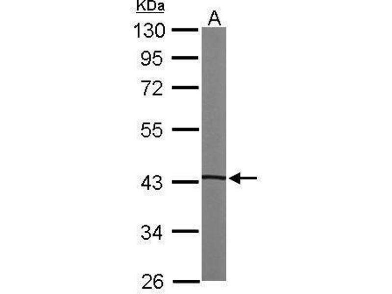 Western Blotting (WB) image for anti-PRKACA antibody (Protein Kinase A, alpha) (Center) (ABIN2855997)