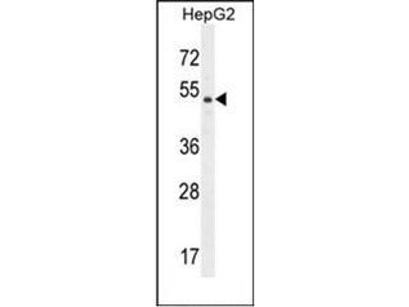 Western Blotting (WB) image for anti-Dipeptidase 3 (DPEP3) (AA 394-424), (C-Term) antibody (ABIN951974)