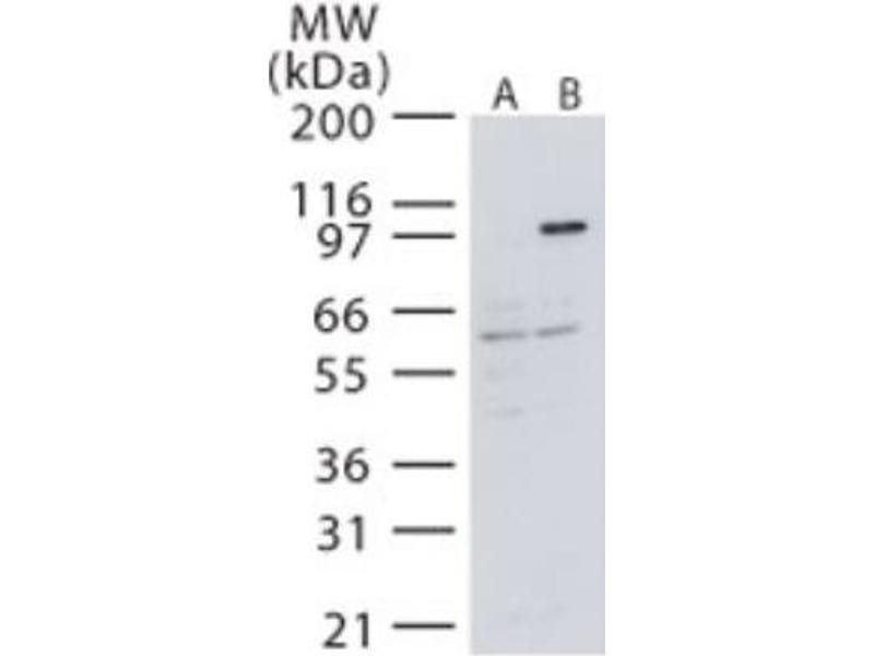 Western Blotting (WB) image for anti-MAP3K14 antibody (Mitogen-Activated Protein Kinase Kinase Kinase 14) (ABIN4235037)