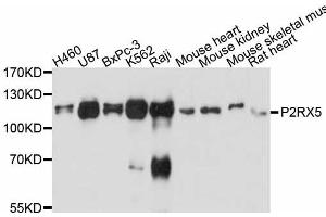 Image no. 1 for anti-Purinergic Receptor P2X, Ligand-Gated Ion Channel, 5 (P2RX5) antibody (ABIN6567235)