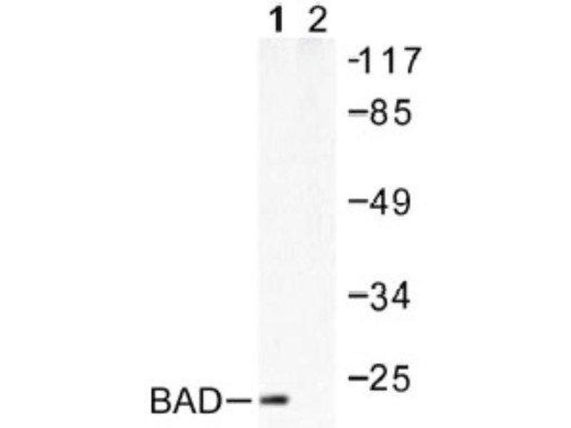 Western Blotting (WB) image for anti-BCL2-Associated Agonist of Cell Death (BAD) antibody (ABIN4282857)