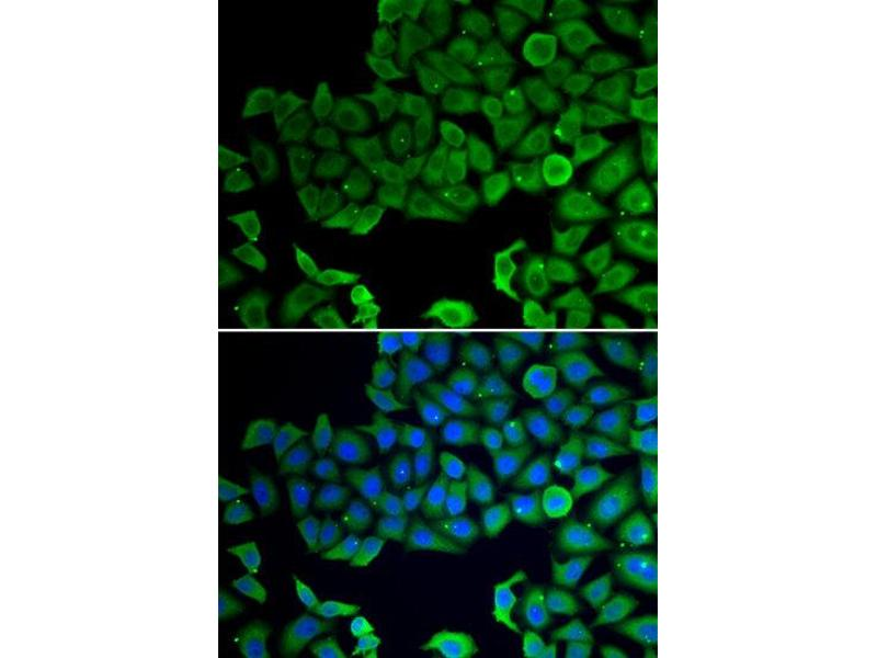 Immunofluorescence (IF) image for anti-Vacuolar Protein Sorting 4 Homolog A (S. Cerevisiae) (VPS4A) antibody (ABIN2560752)