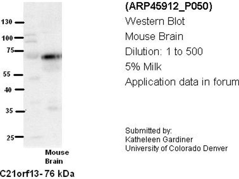 Image no. 2 for anti-Leber Congenital Amaurosis 5-Like (LCA5L) (N-Term) antibody (ABIN405777)