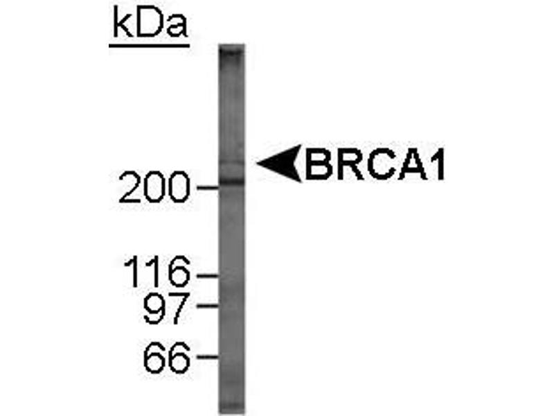 Western Blotting (WB) image for anti-BRCA1 antibody (Breast Cancer 1) (AA 1314-1864) (ABIN152032)