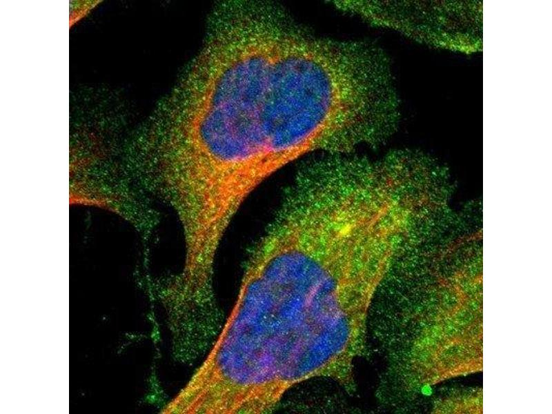 Immunofluorescence (IF) image for anti-PAK1 antibody (P21-Activated Kinase 1) (ABIN4343458)