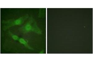 Immunofluorescence (IF) image for anti-PKC zeta antibody (Protein Kinase C, zeta) (pThr410) (ABIN1531192)