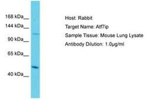 Image no. 1 for anti-Activating Transcription Factor 7 Interacting Protein (ATF7IP) (AA 553-602) antibody (ABIN6750272)