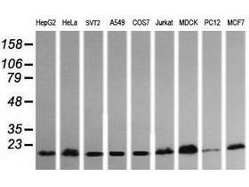 image for anti-HRAS antibody (V-Ha-Ras Harvey Rat Sarcoma Viral Oncogene Homolog) (ABIN1498715)