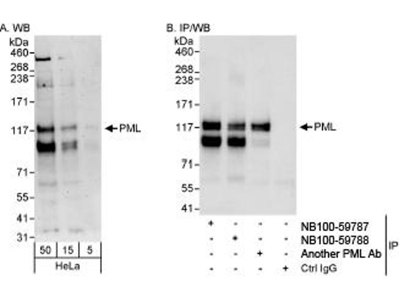 Western Blotting (WB) image for anti-PML antibody (Promyelocytic Leukemia) (AA 575-625) (ABIN252968)