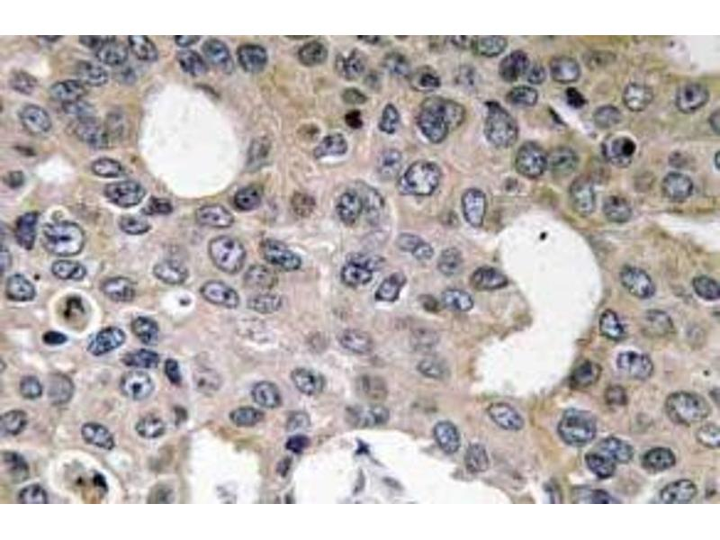 Immunohistochemistry (Paraffin-embedded Sections) (IHC (p)) image for anti-IL4 Receptor antibody (Interleukin 4 Receptor) (ABIN498468)