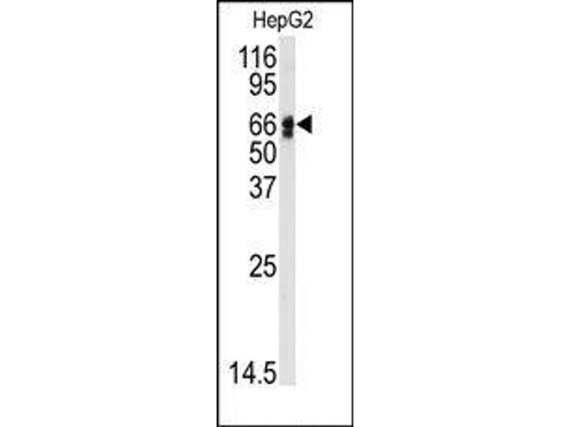 image for anti-AGT antibody (Angiotensinogen (serpin Peptidase Inhibitor, Clade A, Member 8)) (N-Term) (ABIN360211)