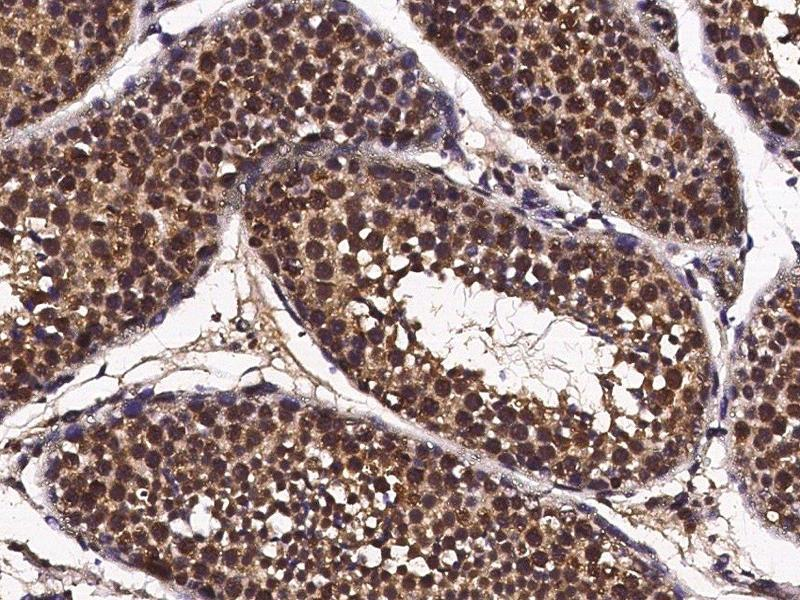 Immunohistochemistry (Paraffin-embedded Sections) (IHC (p)) image for anti-Cyclin A1 antibody (CCNA1) (ABIN2649304)