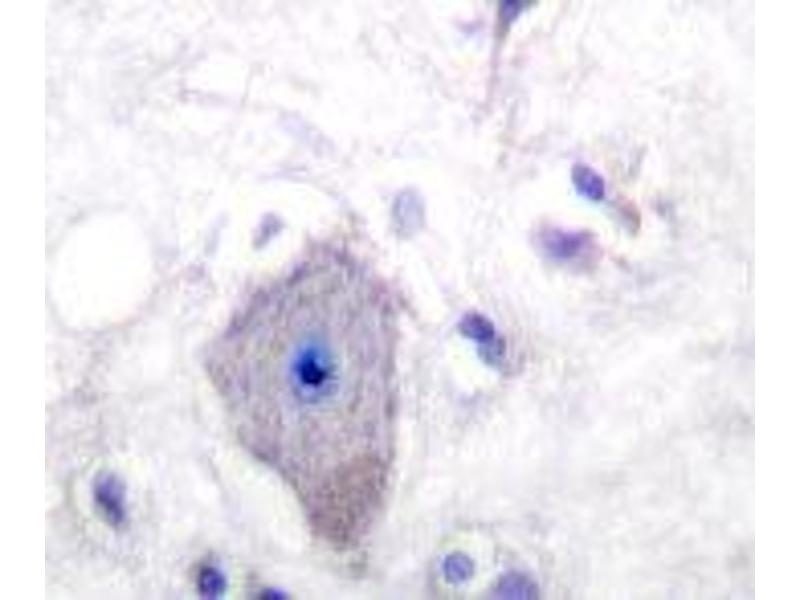 Immunohistochemistry (IHC) image for anti-PDGFRA antibody (Platelet-Derived Growth Factor Receptor, alpha Polypeptide) (Ser1057) (ABIN446762)