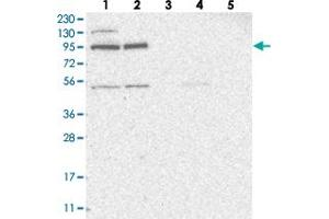Image no. 2 for anti-Zinc Finger Protein 341 (ZNF341) antibody (ABIN5591343)