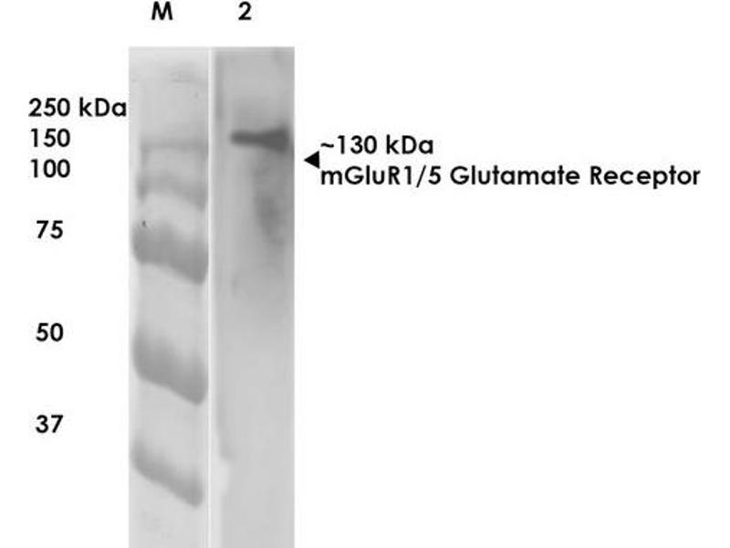 Western Blotting (WB) image for anti-Glutamate Receptor, Metabotropic 5 (GRM5) (AA 824-1203) antibody (FITC) (ABIN2483999)