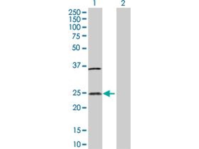 Image no. 1 for anti-Interleukin 32 (IL32) (AA 1-188) antibody (ABIN522699)