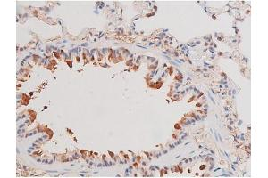 Image no. 4 for anti-Adducin 1 (Alpha) (ADD1) (pSer726) antibody (ABIN6255485)