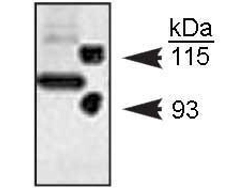 Western Blotting (WB) image for anti-Notch1 antibody (Notch 1) (cleaved) (ABIN152590)