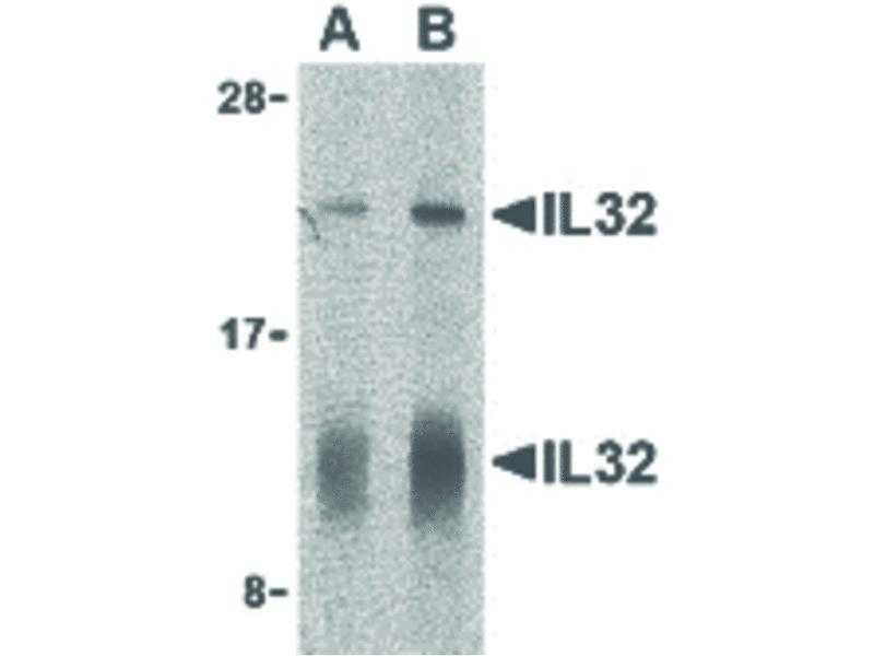 Image no. 1 for anti-Interleukin 32 (IL32) (C-Term) antibody (ABIN6655809)